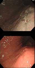 鳥肌胃炎に伴う早期胃癌